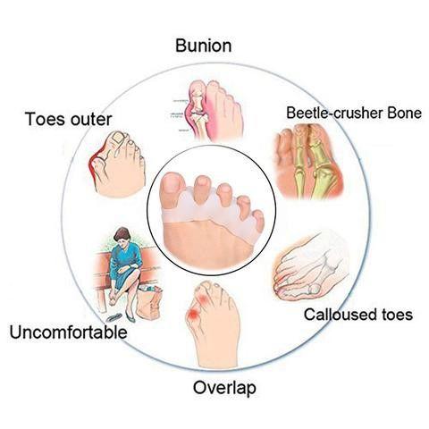 foot problems diagram
