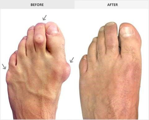 man hammer toe corrector before and after
